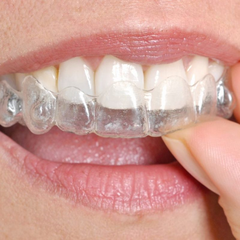 woman-putting-in-her-invisible-braces-G67LFVW